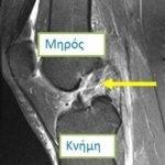 Ρήξη χιαστού στη μαγνητική τομογραφία γόνατος
