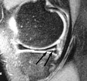 Ρήξη μηνίσκου στη μαγνητική τομογραφία γόνατος